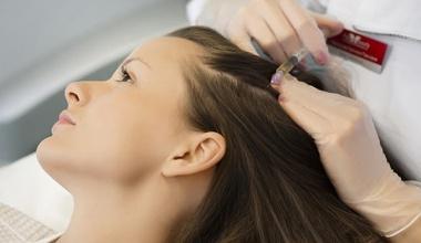 Mezoterpija kose